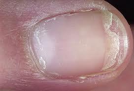 Bệnh vẩy nến – Nguyên nhân, triệu chứng và cách điều trị